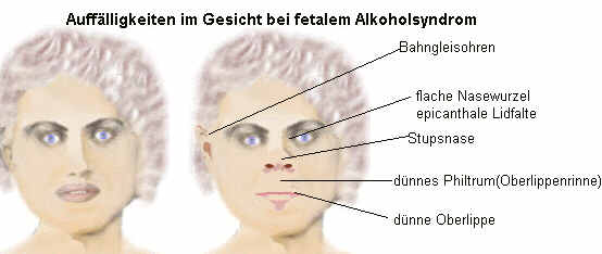 Der emotionale Intellekt beim Alkoholismus