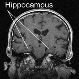 Technology and Techniques in Radiology: Hippocampus MRI